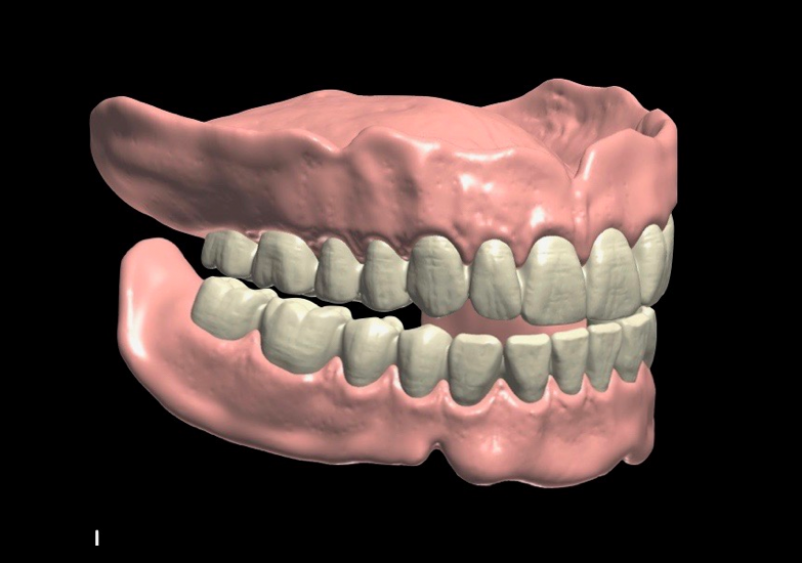 Digital-Dentures
